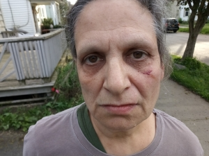 Barton gang's Shianne Hill gang member attacked Herkimer Post editor